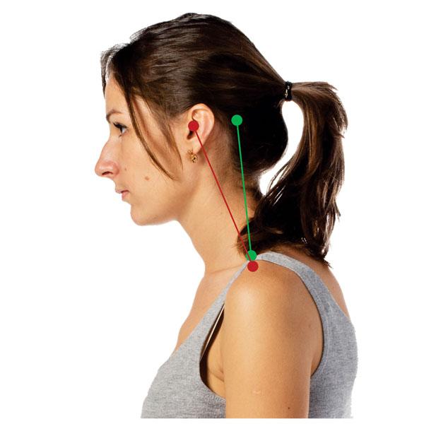 Неправильная осанка - главная причина болей в шее. Положение головы и шеи - 2