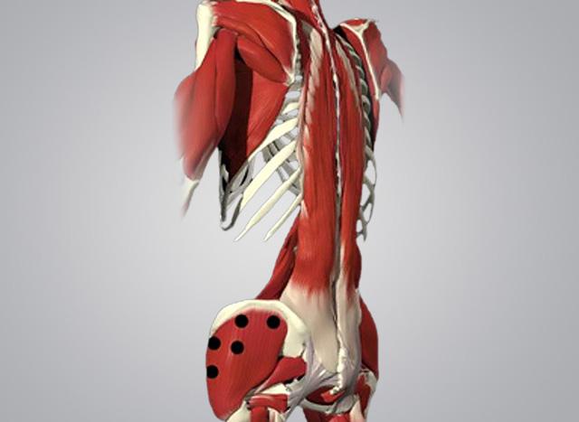 Пример триггерных точек на средней и малой ягодичных мышцах для проработки методом миофасциального релиза (МФР)